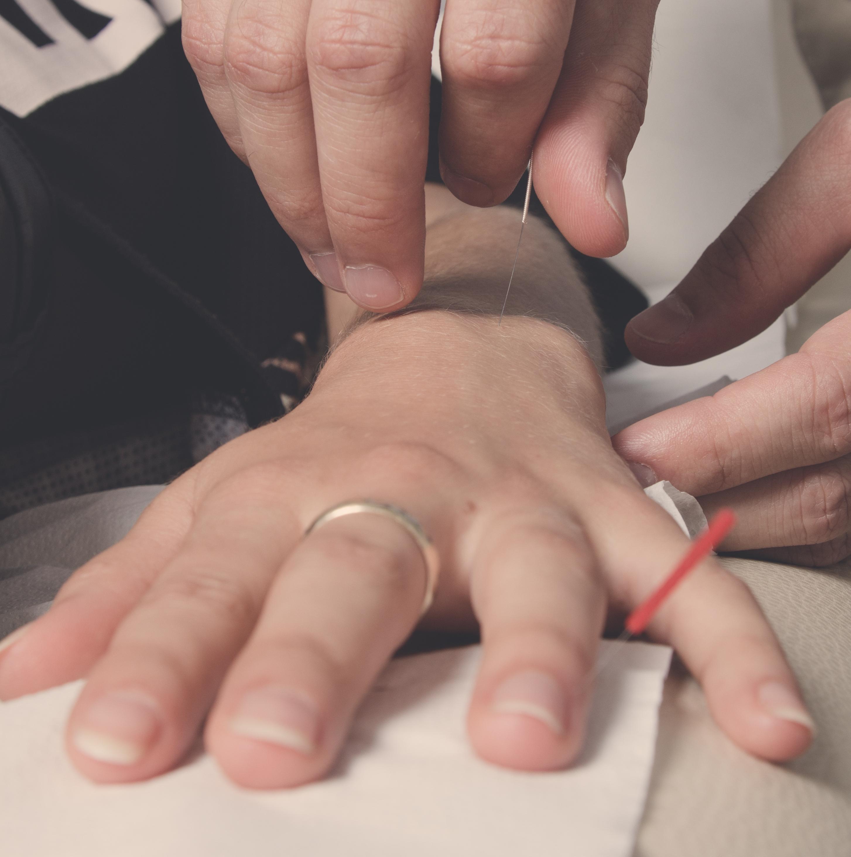 Wskazania do leczenia akupunkturą